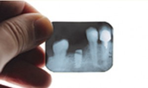 dental x-rays and cleaning